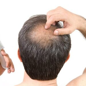 Treatment methods for alopecia