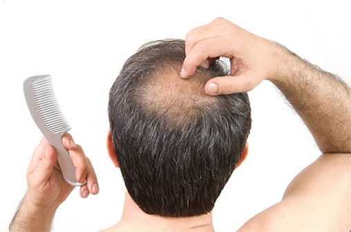 Méthodes de traitement de l'alopécie