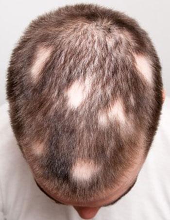 types d'alopécie et de traitements