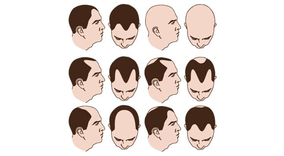 different types of alopecia in men