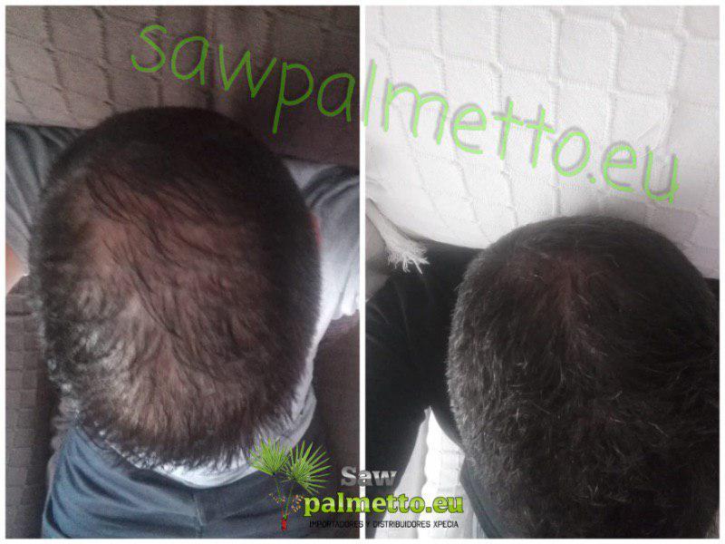traitement xpecia 3 mois