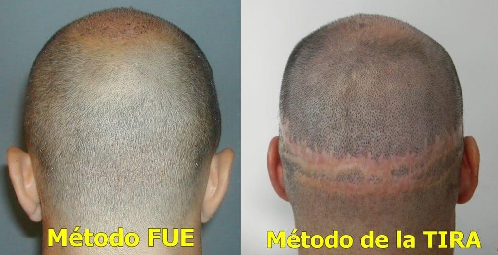 Tecniche di trapianto di capelli